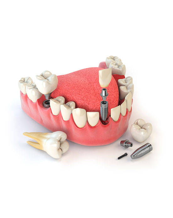 servico-implantes-drsorriso