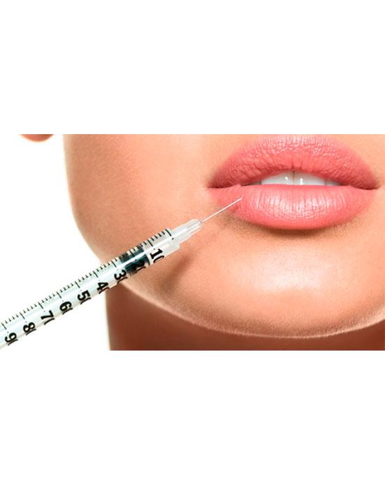 servico-preenchimento-labial-drsorriso