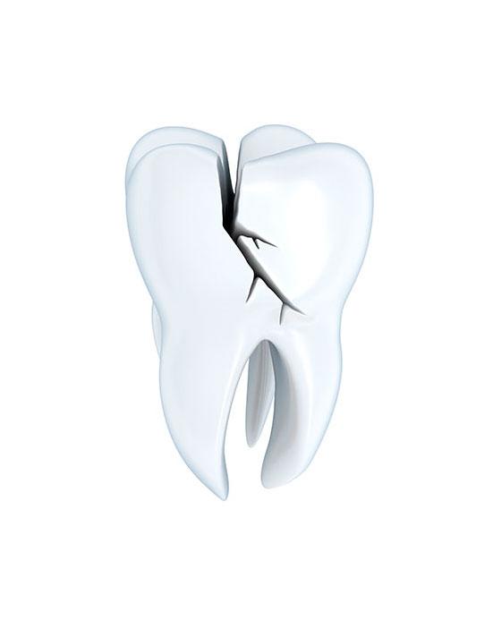 servico-restauracao-dentaria-drsorriso
