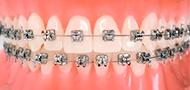 icone-ortodontia-foto